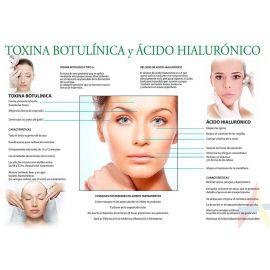 Toxina botulínica y ácido hialurónico